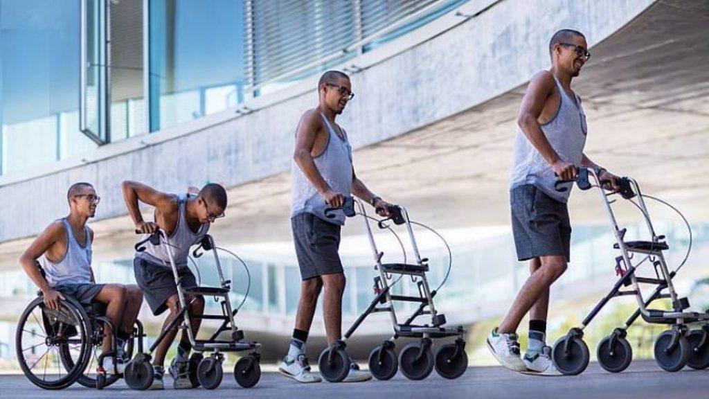 Teknologjia bën që tre të paralizuarit të ecin sërish